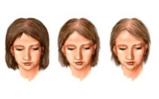 Как остановить облысение при климаксе у женщин