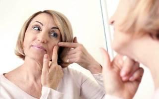 Акне при климаксе как лечить