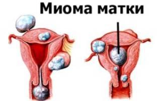 Миома матки появилась после менопаузы