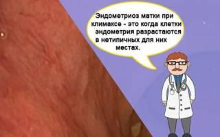 Эндометриоз матки проходит при климаксе