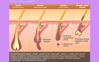 Менопауза как быть с выпадением волос