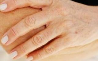 Климакс и пигментные пятна на лице