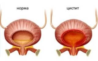 Как укрепить мочевой при менопаузе