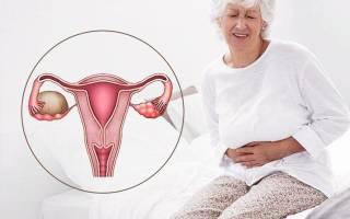 Какие бывают кисты яичников у женщин в менопаузе
