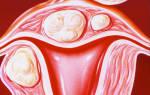 Миома матки субмукозный узел в менопаузе
