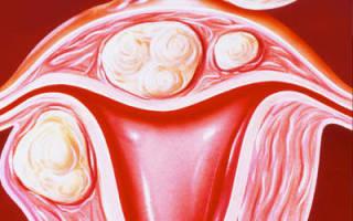 Миома 13 недель при менопаузе