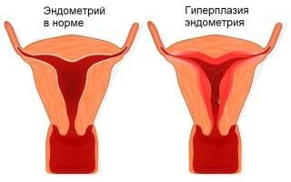 Гиперплазия в менопаузе операция по удалению матки