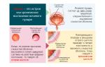 Заболевания хроническим циститом и его лечение