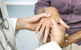 Могут ли во время менопаузы болеть суставы