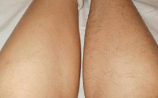 Климакс перестали расти волосы на ногах